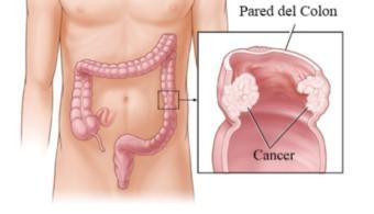 factores-involucrados-en-la-progresion-del-cancer-de-colon-universia-espana